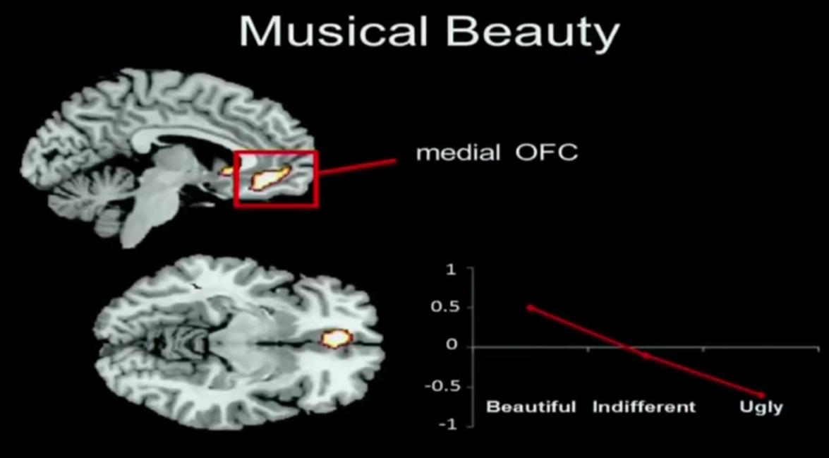 brain regions musical beauty