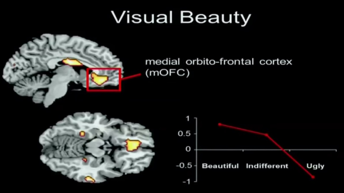 brain regions visual beauty